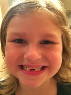 Ella Kate looses her bottom teeth
